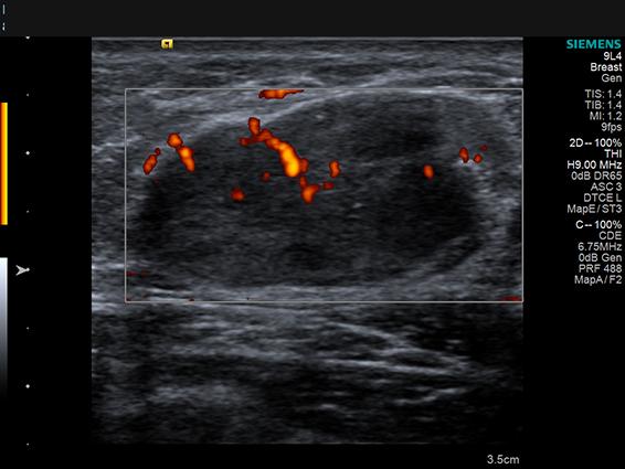 Doppler-Fibroadenom mamar